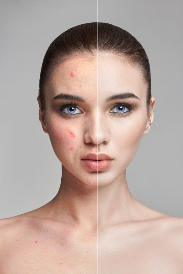 argan oil results before and after